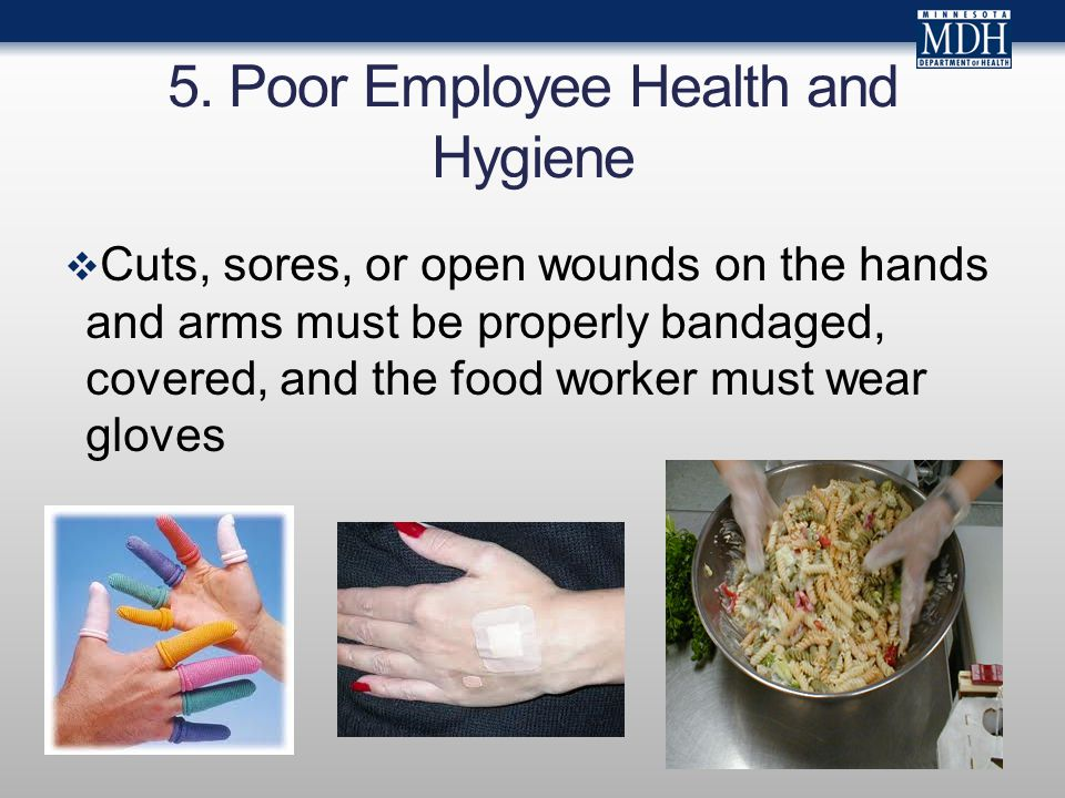 5. Poor Employee Health and Hygiene  Cuts, sores, or open wounds on the hands and arms must be properly bandaged, covered, and the food worker must w
