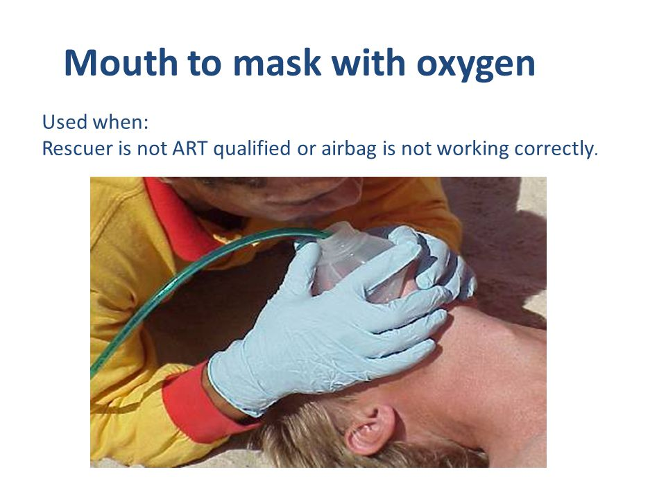 Mouth to mask with oxygen Used when: Rescuer is not ART qualified or airbag is not working correctly.