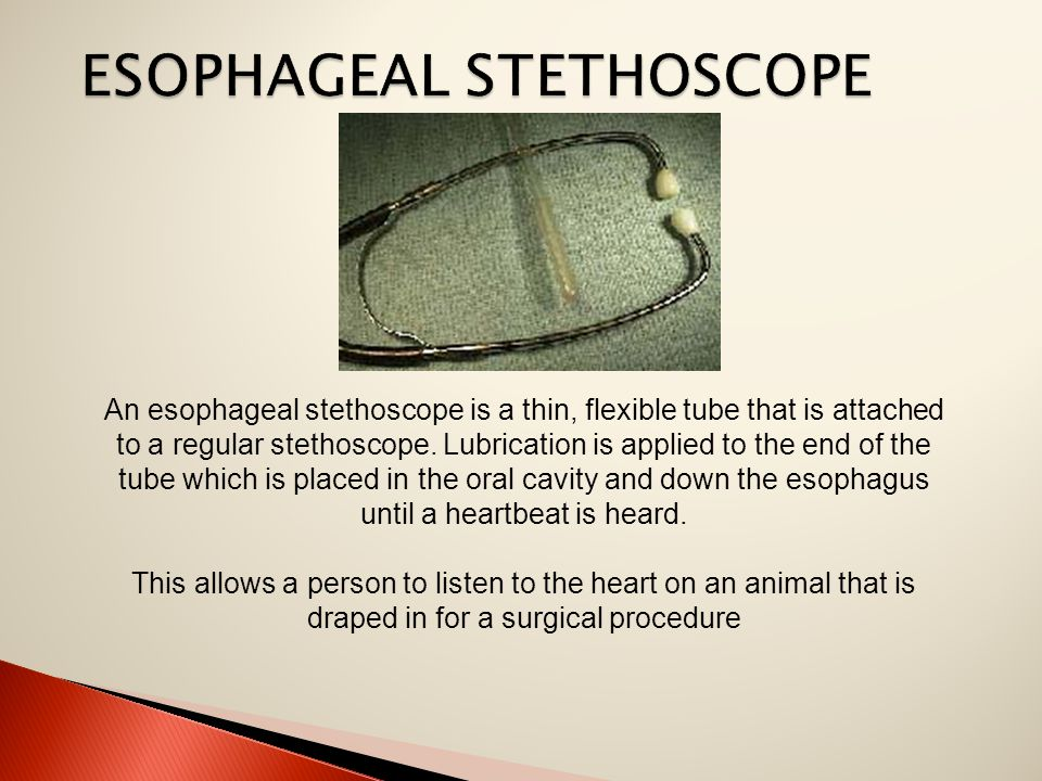 An esophageal stethoscope is a thin, flexible tube that is attached to a regular stethoscope.