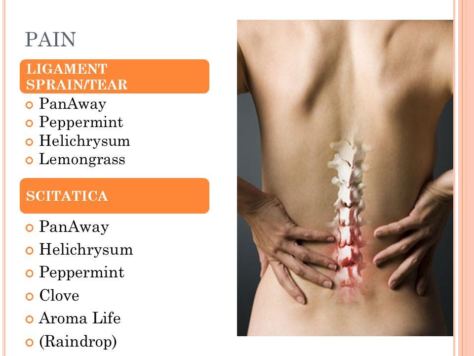 PAIN PanAway Peppermint Helichrysum Lemongrass PanAway Helichrysum Peppermint Clove Aroma Life (Raindrop) LIGAMENT SPRAIN/TEAR SCITATICA