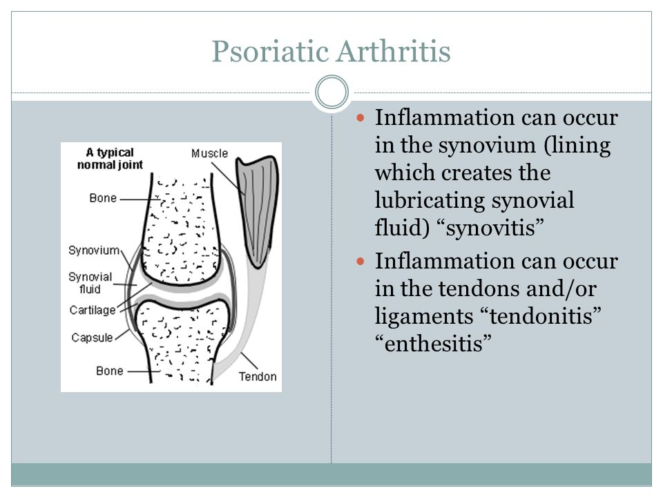 Psoriatic Arthritis Inflammation can occur in the synovium (lining which creates the lubricating synovial fluid) synovitis Inflammation can occur in the tendons and/or ligaments tendonitis enthesitis