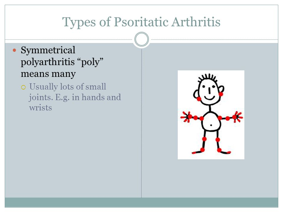 Types of Psoritatic Arthritis Symmetrical polyarthritis poly means many  Usually lots of small joints.