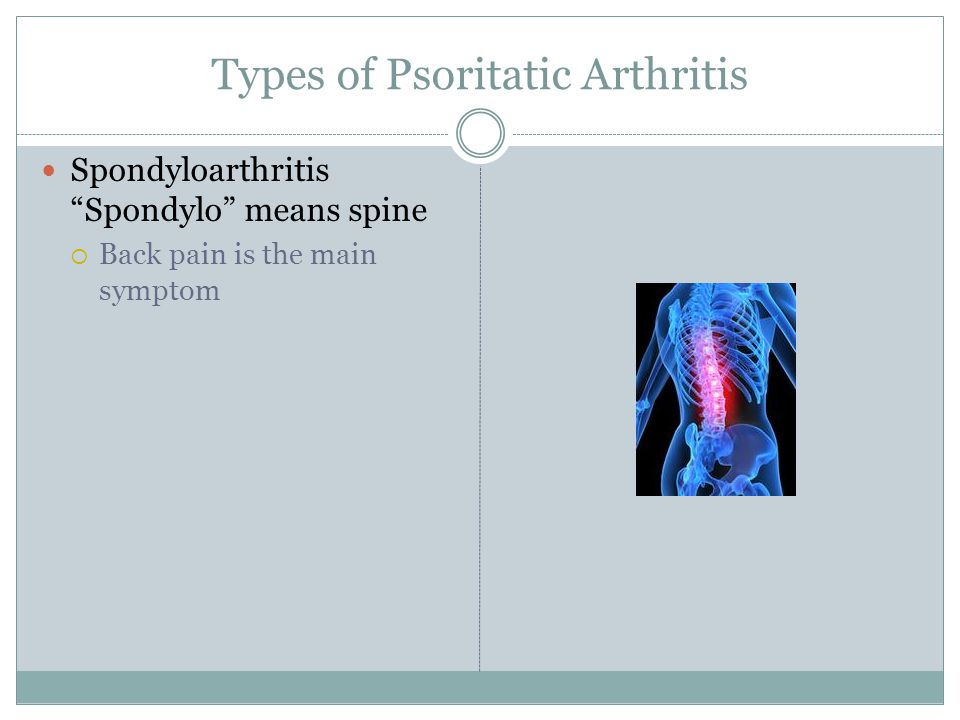 Types of Psoritatic Arthritis Spondyloarthritis Spondylo means spine  Back pain is the main symptom
