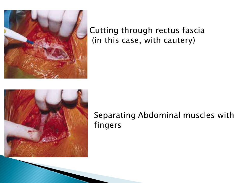 Skin incision is made, then the subcutaneous (sub-q) tissue down to the fascia is incised.