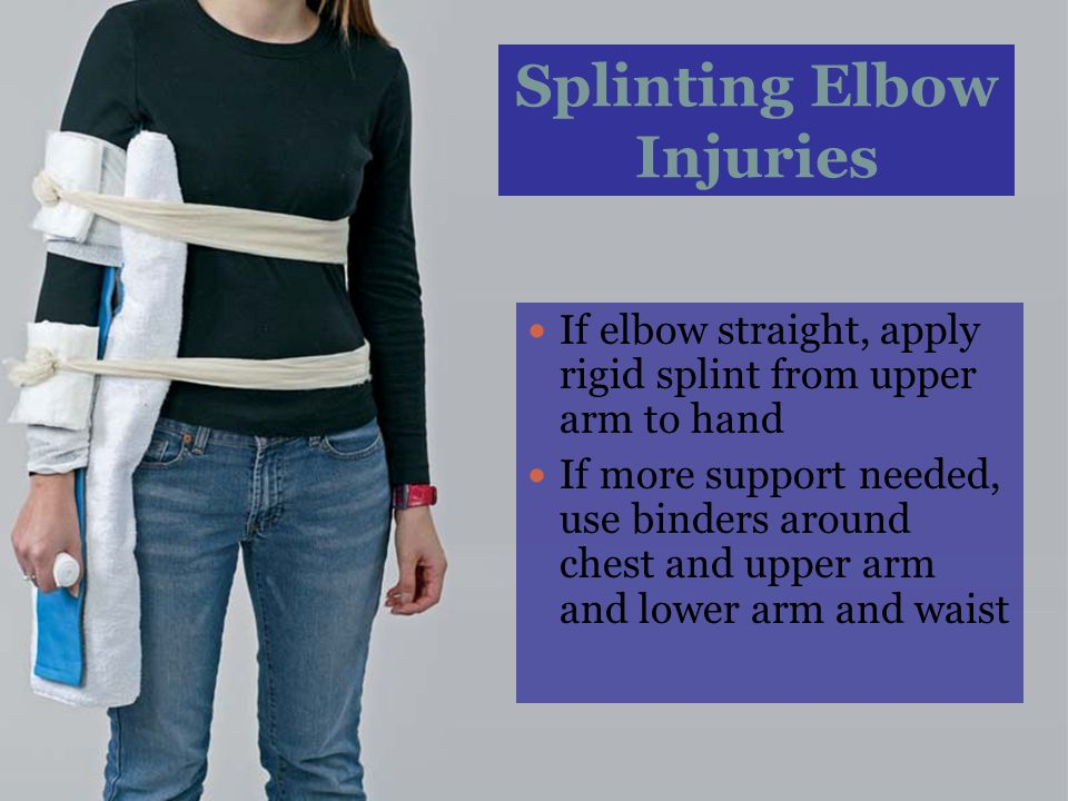 Splinting Elbow Injuries If elbow straight, apply rigid splint from upper arm to hand If more support needed, use binders around chest and upper arm a