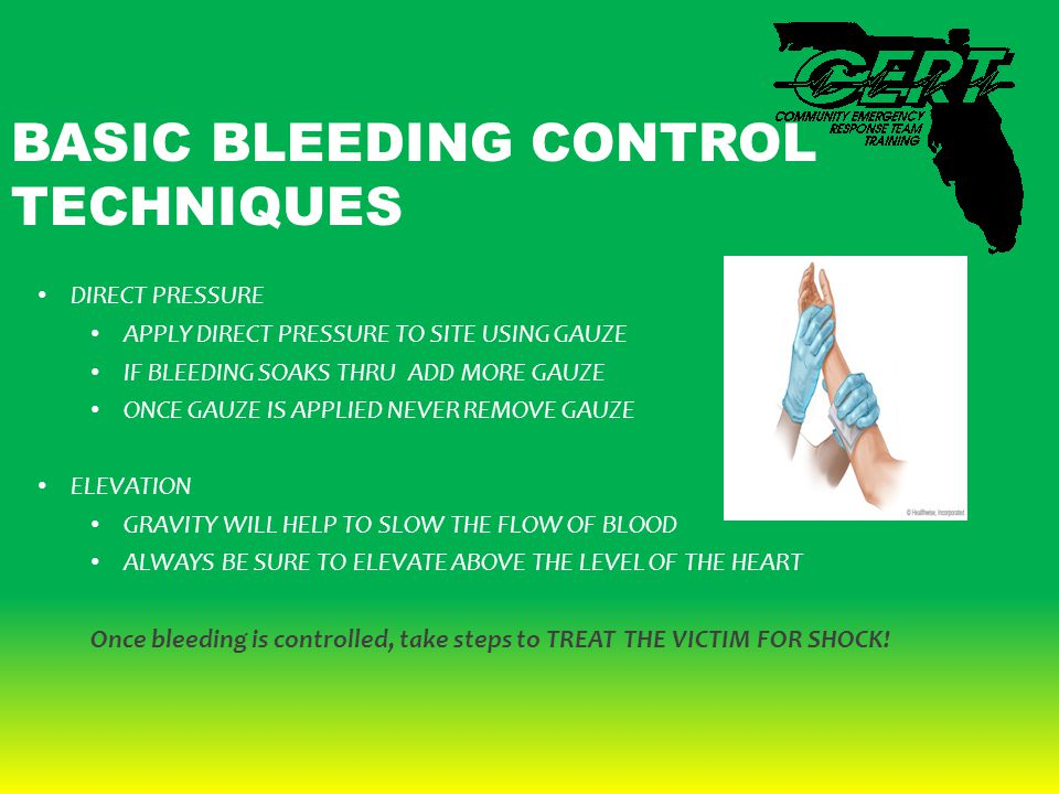 BASIC BLEEDING CONTROL TECHNIQUES DIRECT PRESSURE APPLY DIRECT PRESSURE TO SITE USING GAUZE IF BLEEDING SOAKS THRU ADD MORE GAUZE ONCE GAUZE IS APPLIE