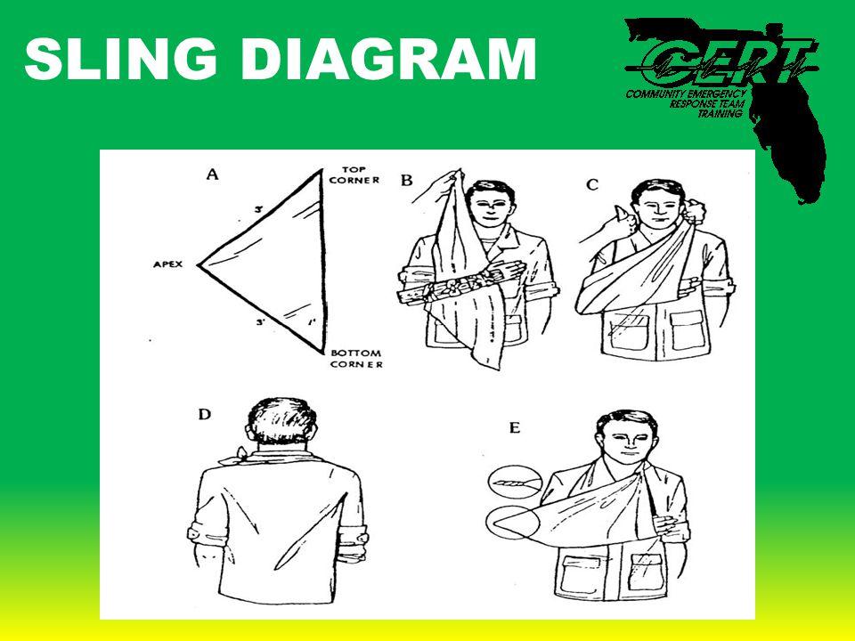 SLING DIAGRAM