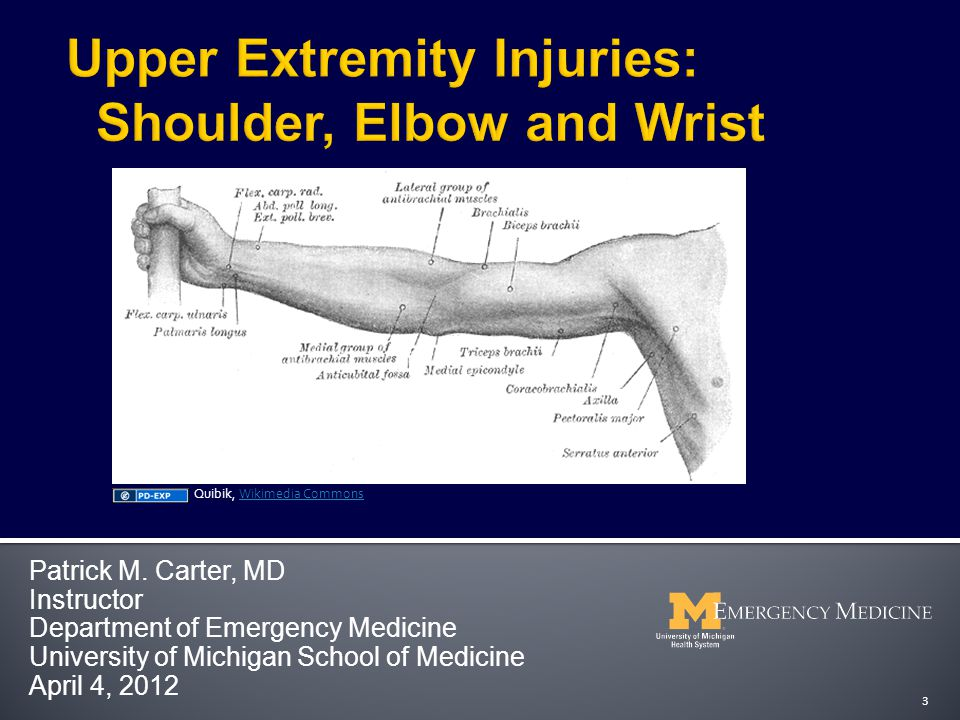 Review key orthopedic injuries of the shoulder, upper arm, elbow, forearm and wrist  Fractures  Dislocations  Ligamentous Injuries  Identify key x-ray findings  Review treatment options for orthopedic disorders of upper extremity  Review key complications of upper extremity disorders  Not a complete review of all upper extremity injuries 4