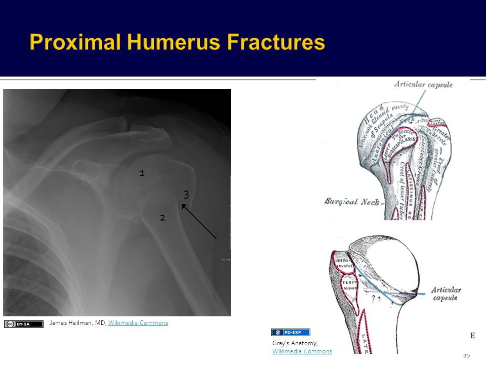 Fragments of Humerus Head Articular surface of humeral head Greater tubercle Lesser tubercle Shaft of humerus 35 3 1 2 James Heilman, MD, Wikimedia Co