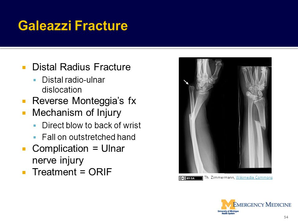  Distal Radius Fracture  Distal radio-ulnar dislocation  Reverse Monteggia's fx  Mechanism of Injury  Direct blow to back of wrist  Fall on outs