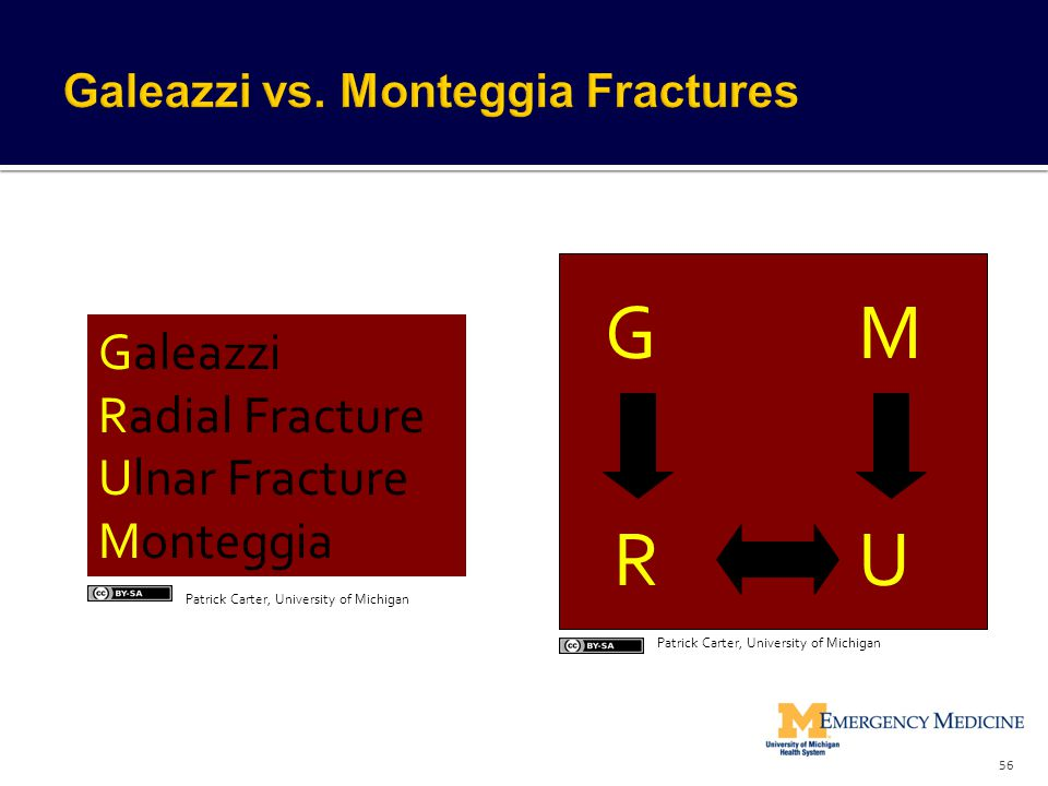 Galeazzi Radial Fracture Ulnar Fracture Monteggia GM UR 56 Patrick Carter, University of Michigan