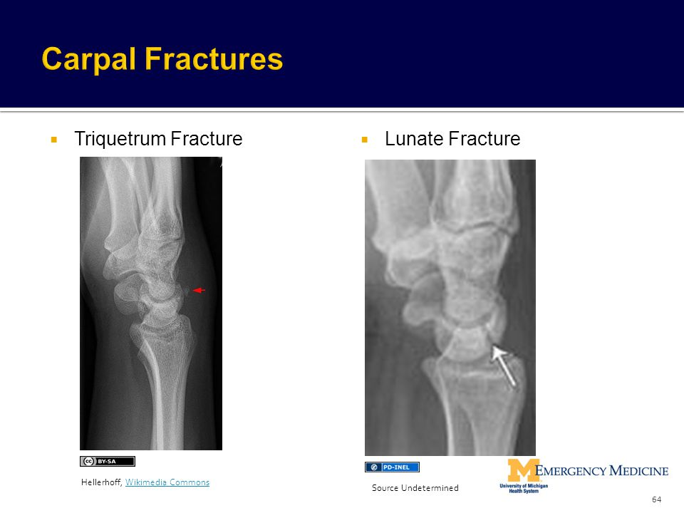  Triquetrum Fracture  Lunate Fracture 64 Hellerhoff, Wikimedia CommonsWikimedia Commons Source Undetermined
