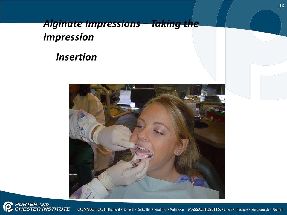 16 Alginate Impressions – Taking the Impression Insertion