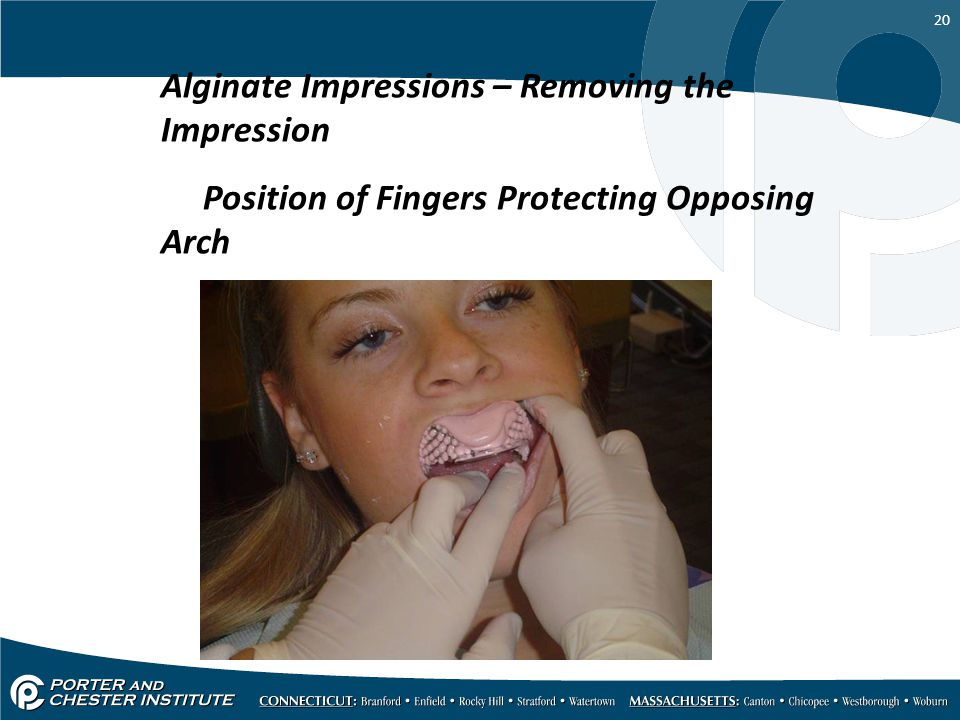 20 Alginate Impressions – Removing the Impression Position of Fingers Protecting Opposing Arch