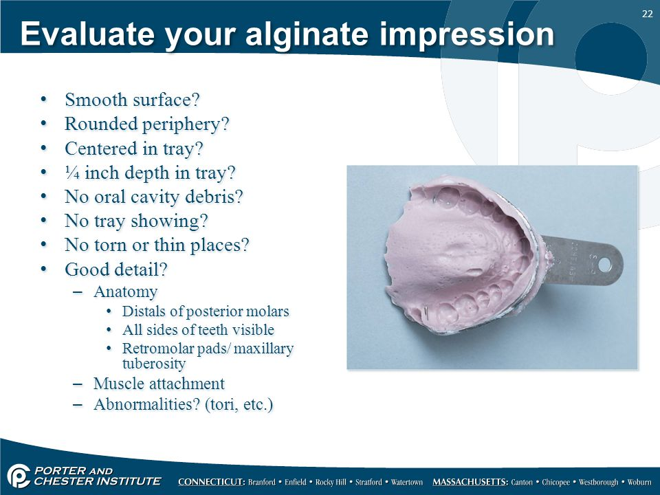 22 Evaluate your alginate impression Smooth surface? Rounded periphery? Centered in tray? ¼ inch depth in tray? No oral cavity debris? No tray showing