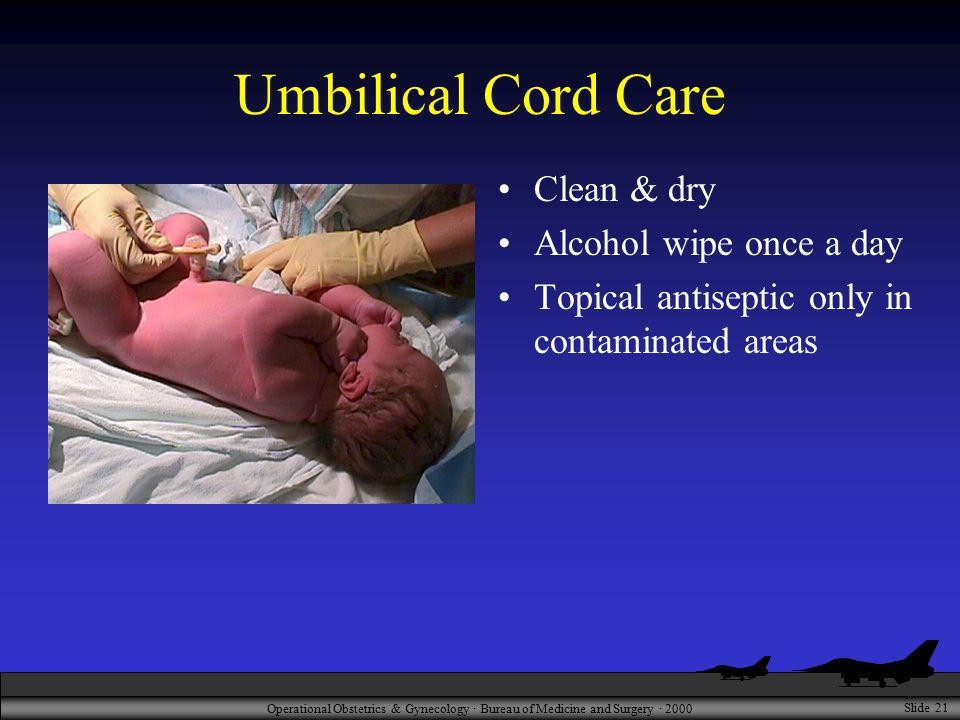 Operational Obstetrics & Gynecology · Bureau of Medicine and Surgery · 2000 Slide 21 Umbilical Cord Care Clean & dry Alcohol wipe once a day Topical a