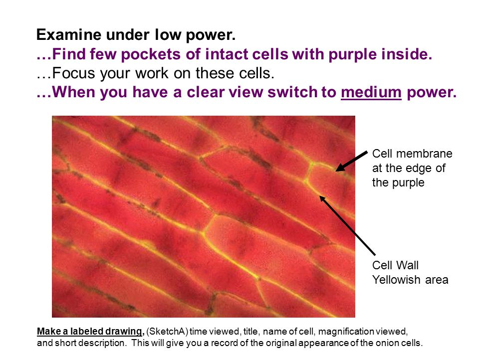 Examine under low power. …Find few pockets of intact cells with purple inside. …Focus your work on these cells. …When you have a clear view switch to