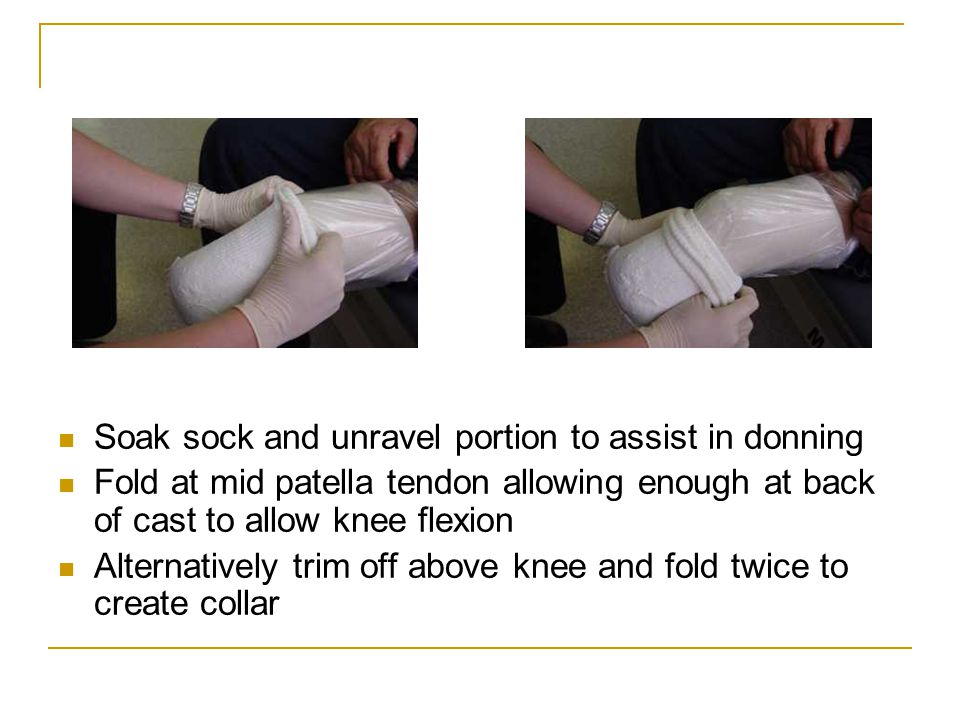 Soak sock and unravel portion to assist in donning Fold at mid patella tendon allowing enough at back of cast to allow knee flexion Alternatively trim