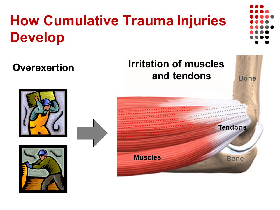 Muscles Tendons Bone How Cumulative Trauma Injuries Develop Irritation of muscles and tendons Overexertion