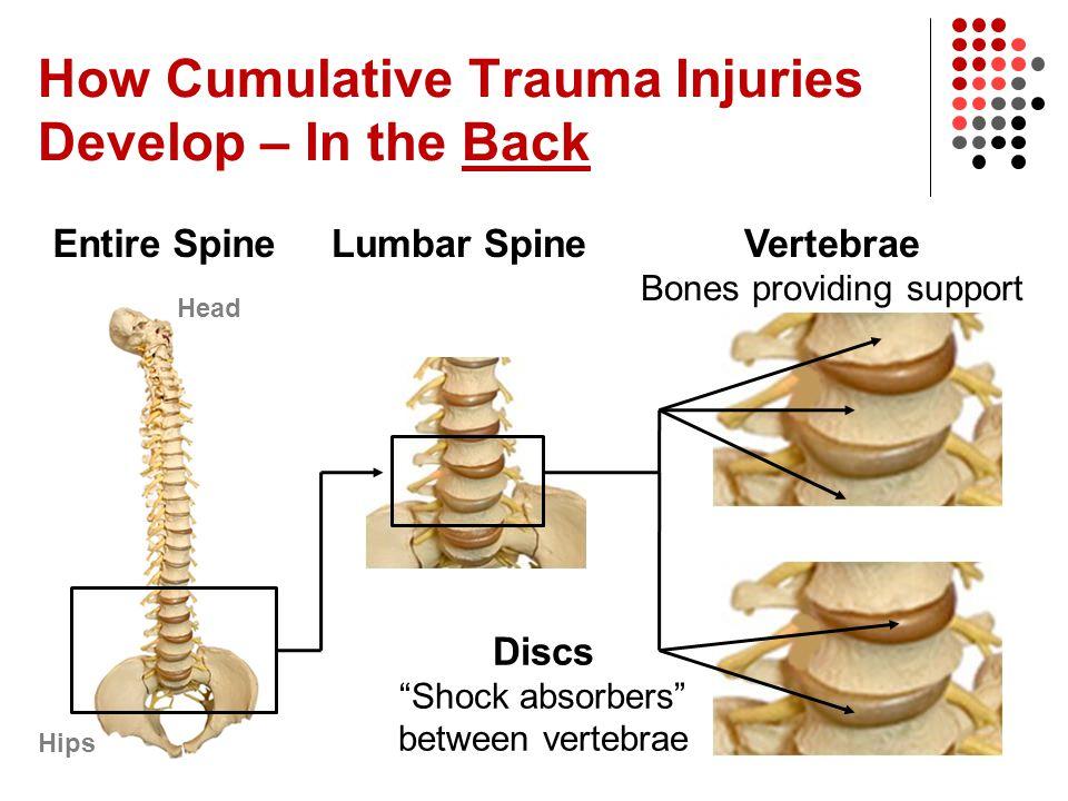 "How Cumulative Trauma Injuries Develop – In the Back Entire Spine Head Hips Lumbar Spine Discs ""Shock absorbers"" between vertebrae Vertebrae Bones pro"