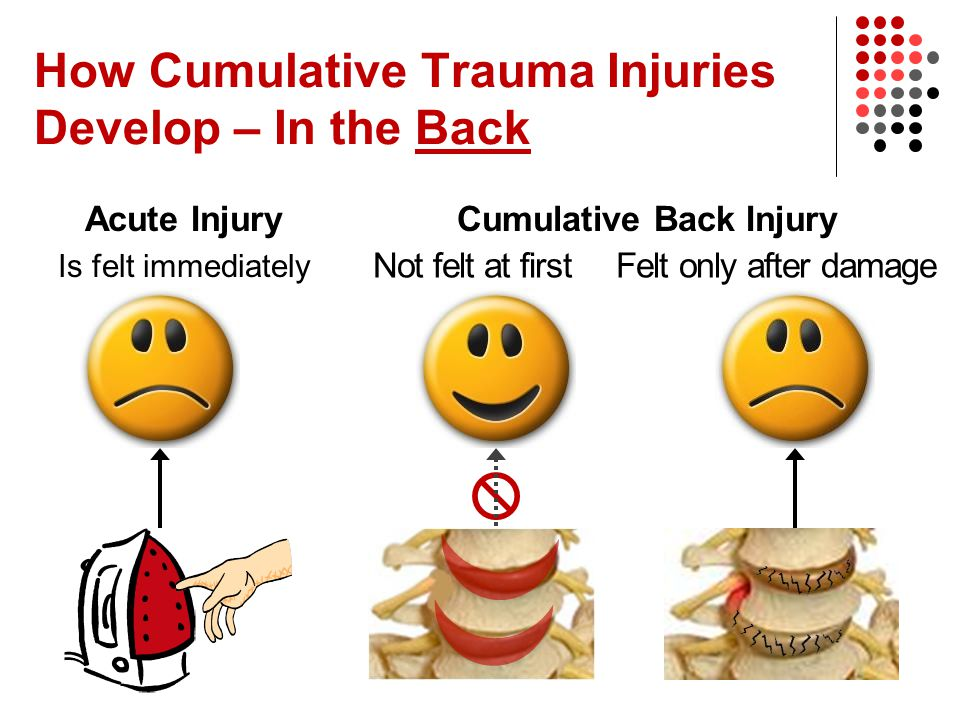 How Cumulative Trauma Injuries Develop – In the Back Acute Injury Is felt immediately Cumulative Back Injury Not felt at firstFelt only after damage