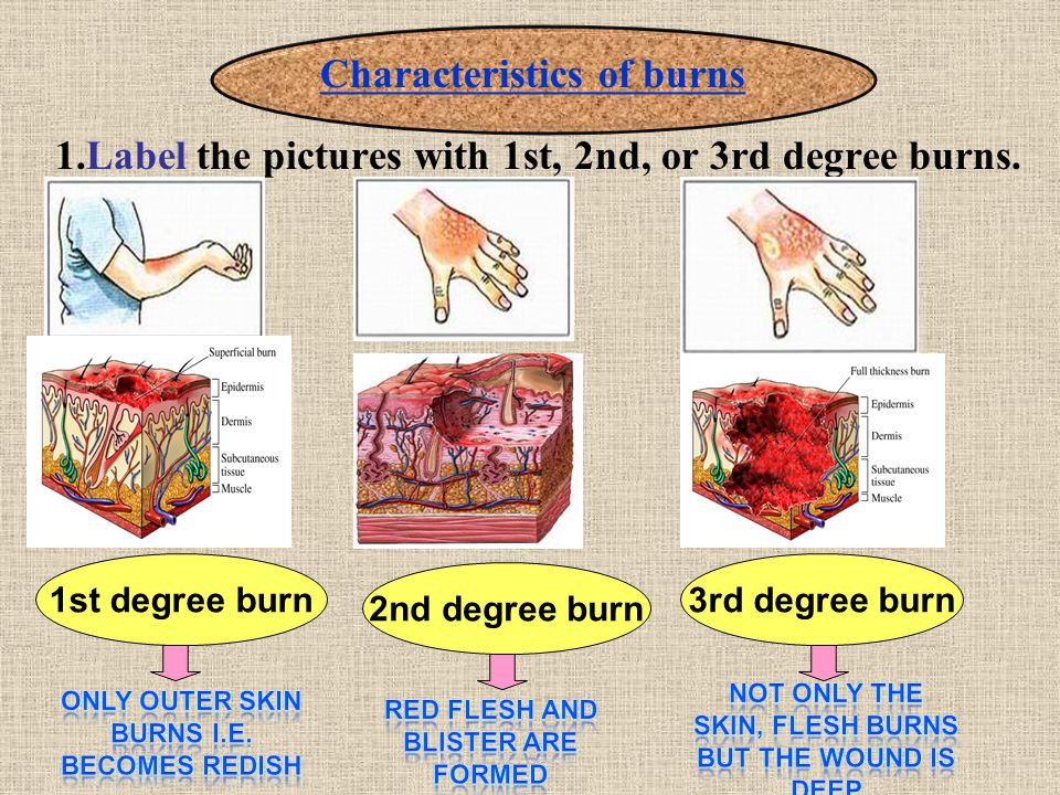 1.Label the pictures with 1st, 2nd, or 3rd degree burns.