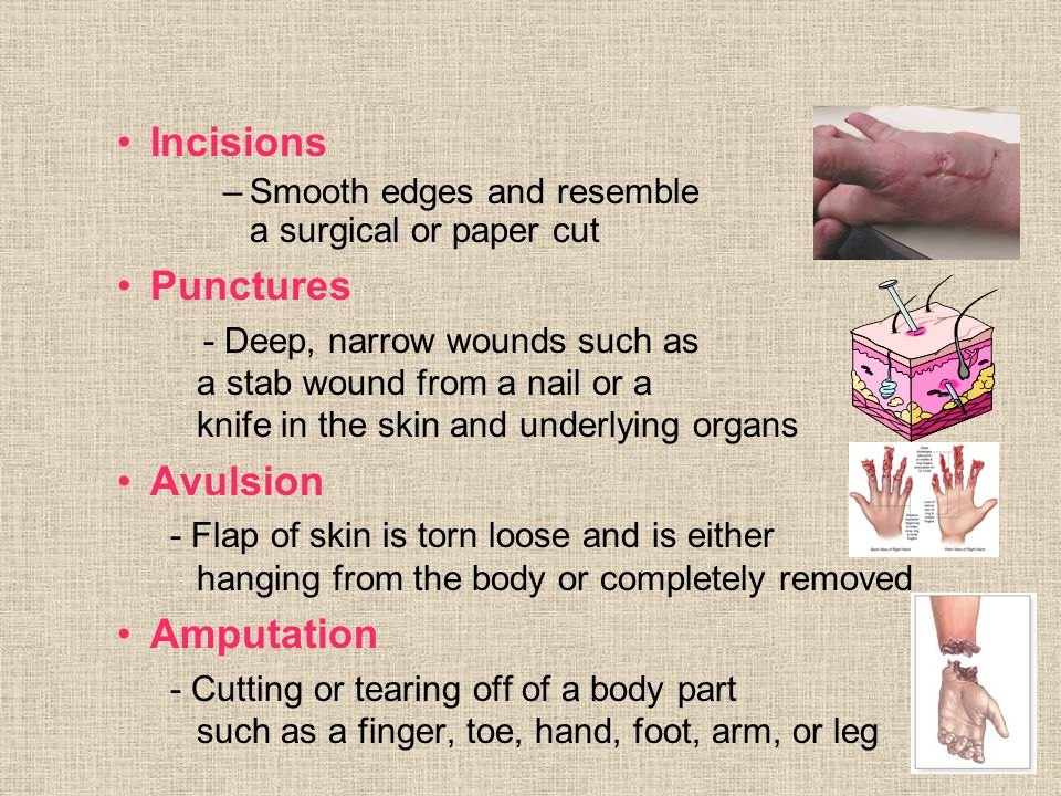 Incisions –Smooth edges and resemble a surgical or paper cut Punctures - Deep, narrow wounds such as a stab wound from a nail or a knife in the skin and underlying organs Avulsion - Flap of skin is torn loose and is either hanging from the body or completely removed Amputation - Cutting or tearing off of a body part such as a finger, toe, hand, foot, arm, or leg