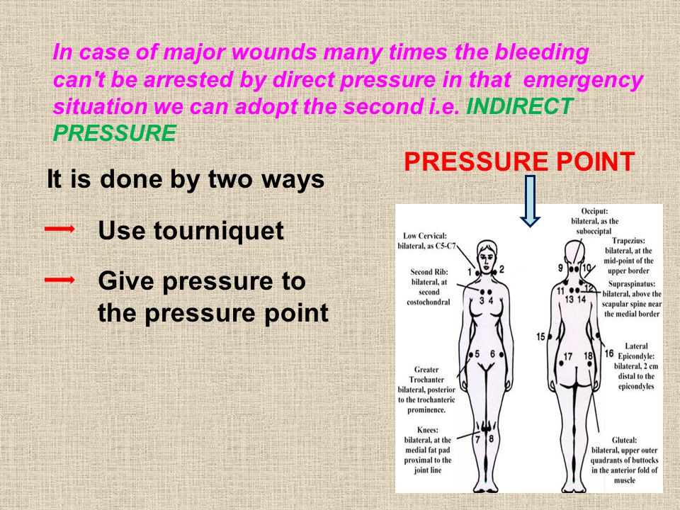 In case of major wounds many times the bleeding can t be arrested by direct pressure in that emergency situation we can adopt the second i.e.