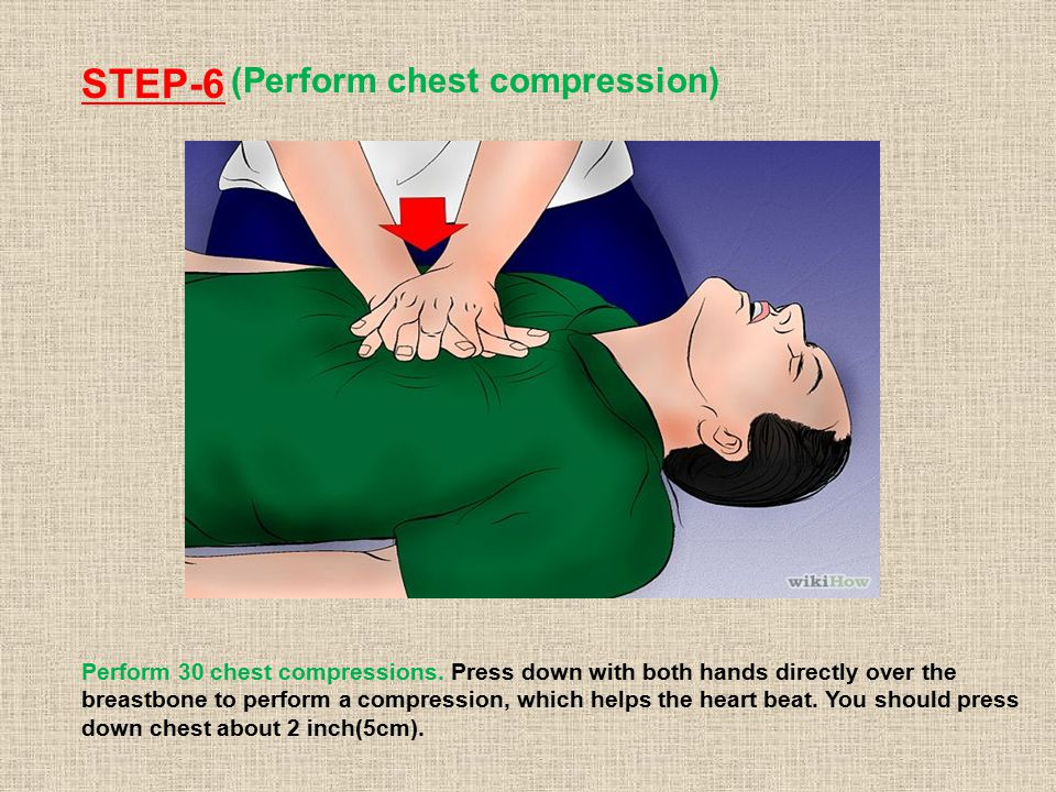 STEP-6 (Perform chest compression) Perform 30 chest compressions.
