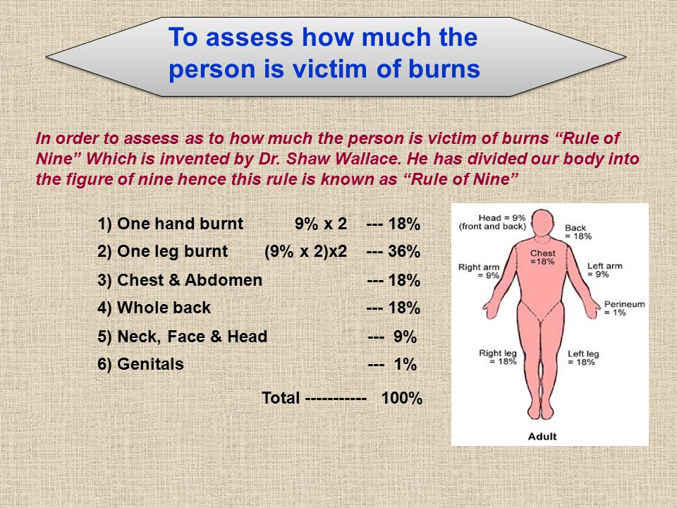 In order to assess as to how much the person is victim of burns Rule of Nine Which is invented by Dr.