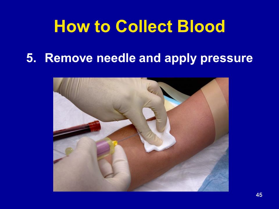 45 How to Collect Blood 5.Remove needle and apply pressure