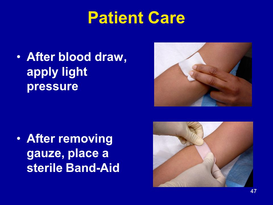 47 Patient Care After blood draw, apply light pressure After removing gauze, place a sterile Band-Aid