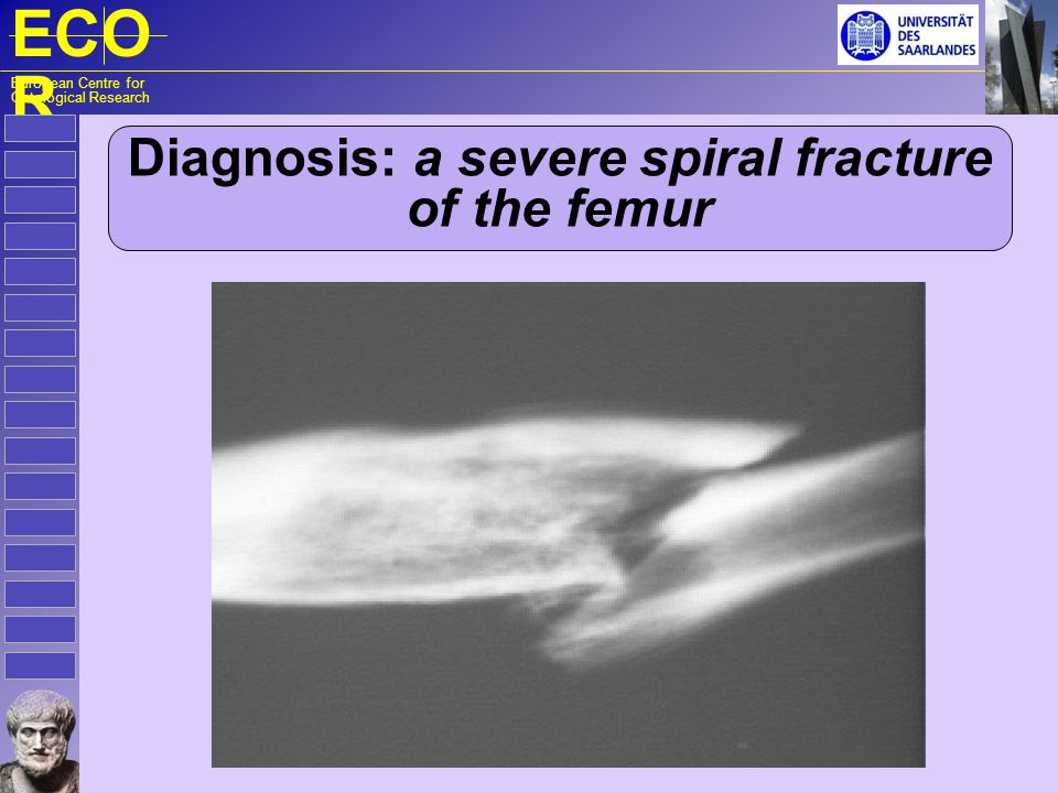 ECO R European Centre for Ontological Research Diagnosis: a severe spiral fracture of the femur