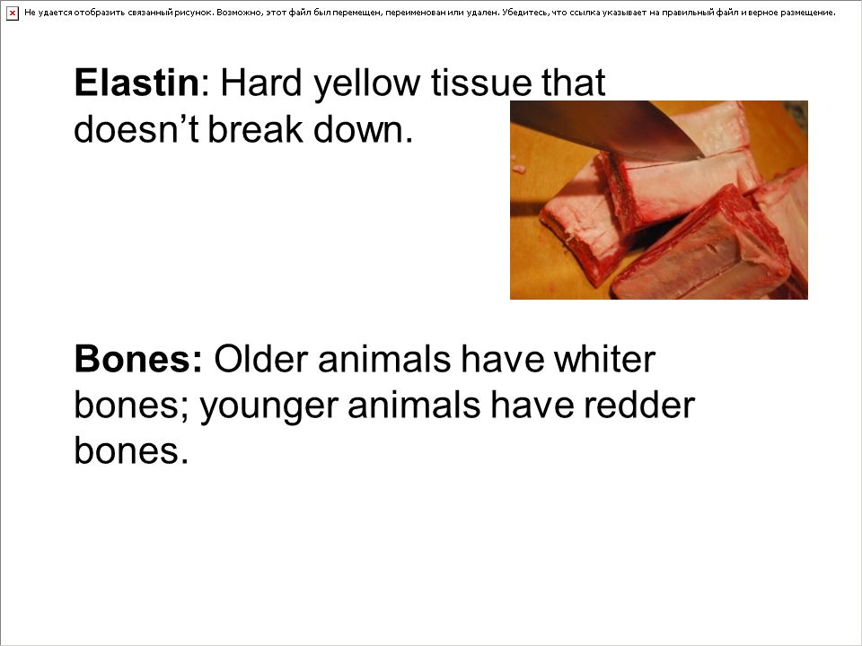 Elastin: Hard yellow tissue that doesn't break down.