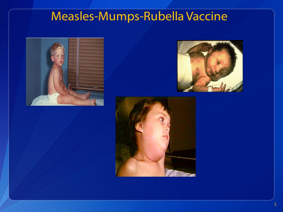Measles-Mumps-Rubella Vaccine 5