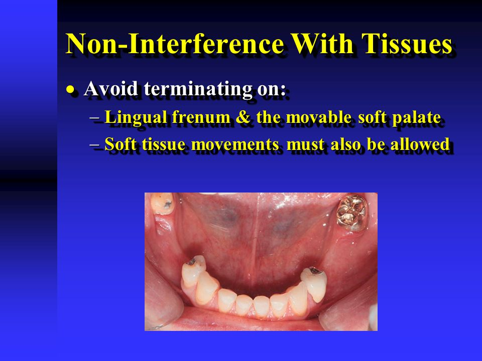 Non-Interference With Tissues  Avoid terminating on:  Lingual frenum & the movable soft palate  Soft tissue movements must also be allowed  Avoid