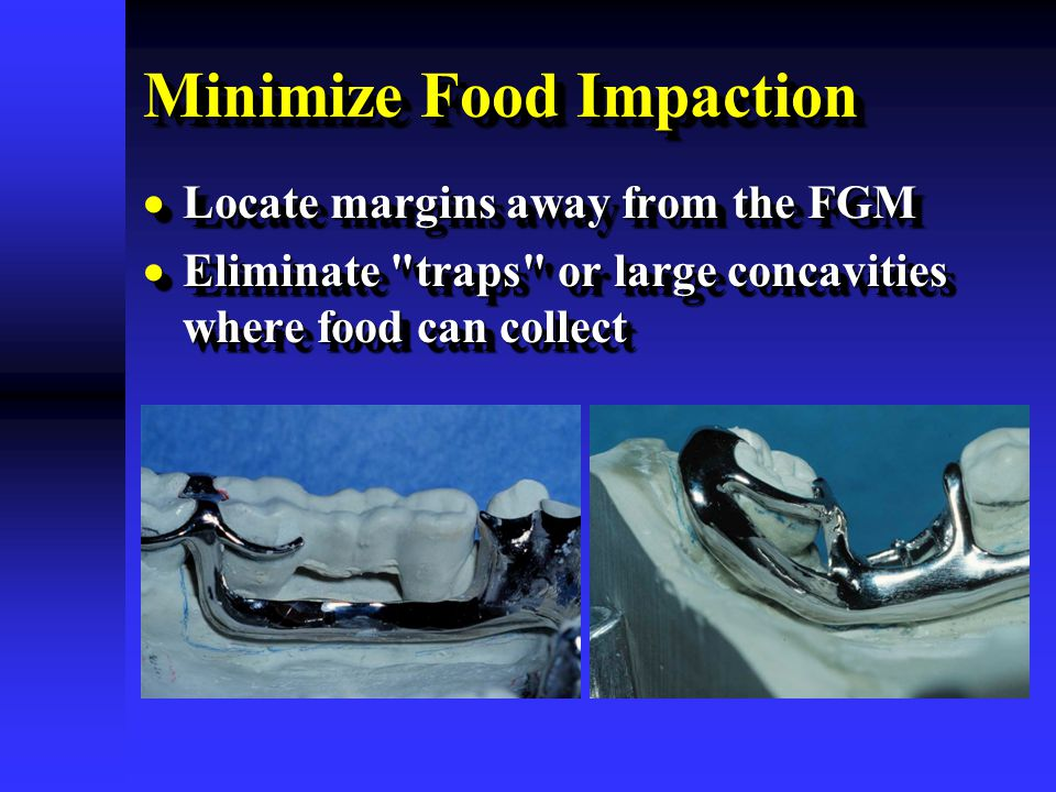 Minimize Food Impaction  Locate margins away from the FGM  Eliminate