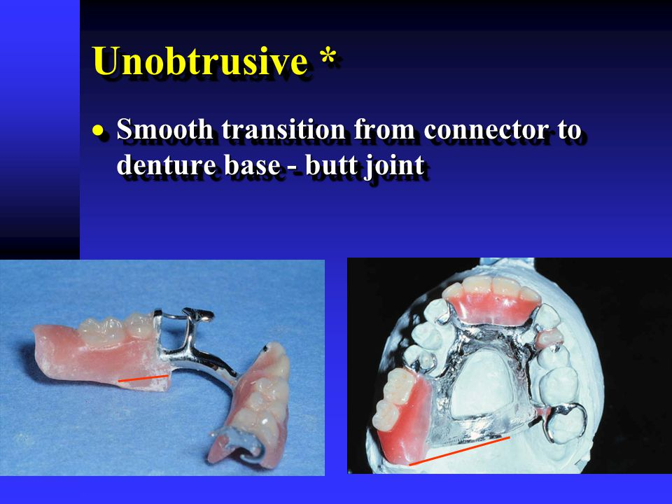 Unobtrusive *  Smooth transition from connector to denture base - butt joint