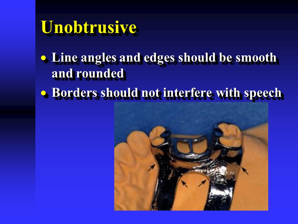 UnobtrusiveUnobtrusive  Line angles and edges should be smooth and rounded  Borders should not interfere with speech  Line angles and edges should