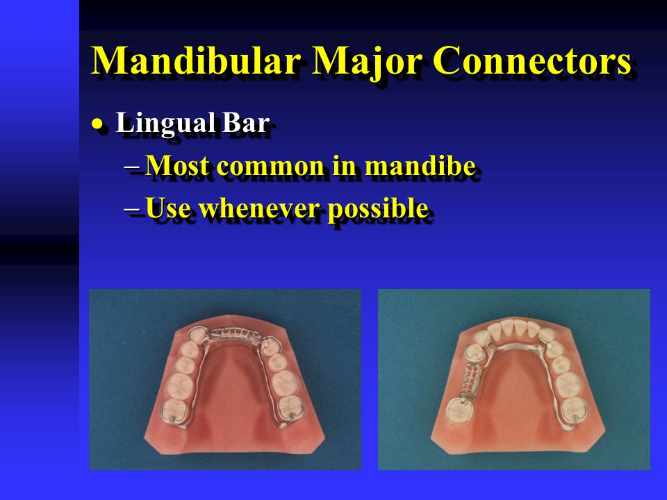 Mandibular Major Connectors  Lingual Bar  Most common in mandibe  Use whenever possible  Lingual Bar  Most common in mandibe  Use whenever possi