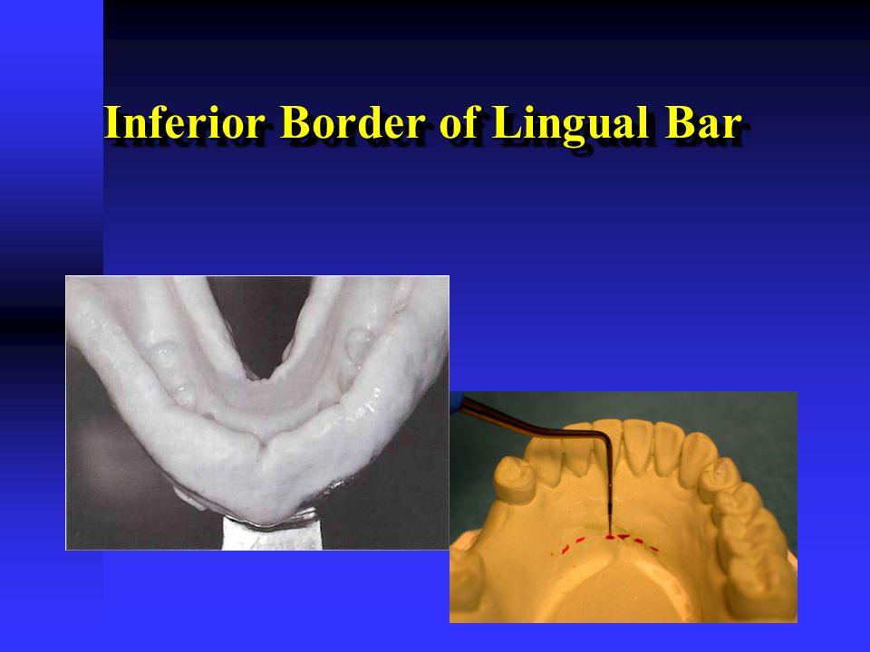 Inferior Border of Lingual Bar
