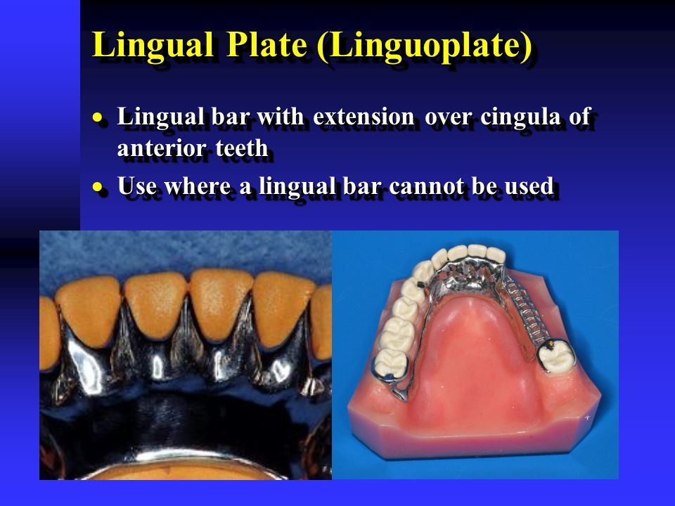 Lingual Plate (Linguoplate)  Lingual bar with extension over cingula of anterior teeth  Use where a lingual bar cannot be used  Lingual bar with ex
