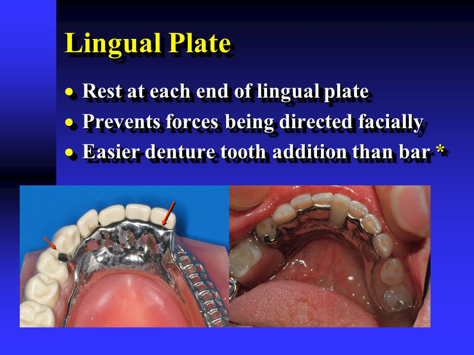 Lingual Plate  Rest at each end of lingual plate  Prevents forces being directed facially  Easier denture tooth addition than bar *  Rest at each