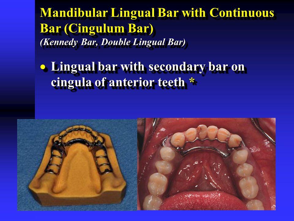 Mandibular Lingual Bar with Continuous Bar (Cingulum Bar) (Kennedy Bar, Double Lingual Bar)  Lingual bar with secondary bar on cingula of anterior te