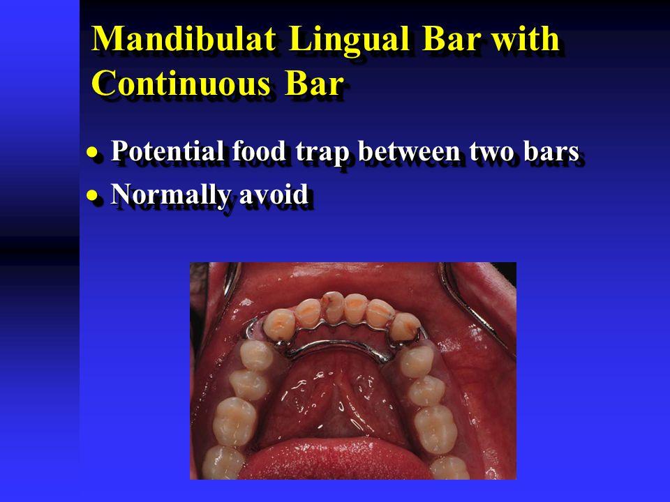 Mandibulat Lingual Bar with Continuous Bar  Potential food trap between two bars  Normally avoid  Potential food trap between two bars  Normally a