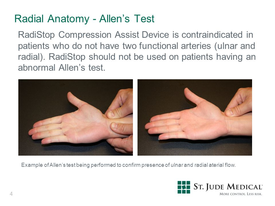 Radial Anatomy - Allen's Test RadiStop Compression Assist Device is contraindicated in patients who do not have two functional arteries (ulnar and rad