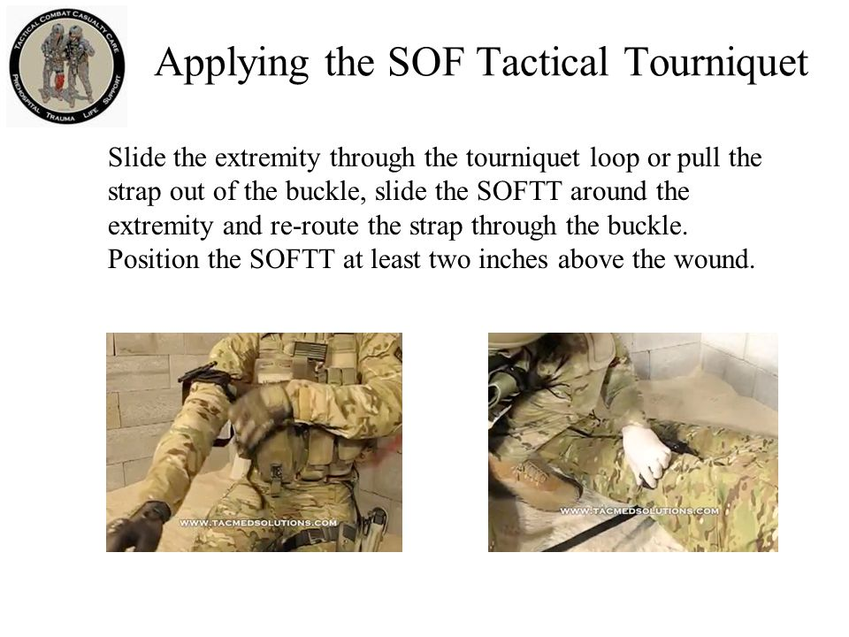 Applying the SOF Tactical Tourniquet Slide the extremity through the tourniquet loop or pull the strap out of the buckle, slide the SOFTT around the extremity and re-route the strap through the buckle.