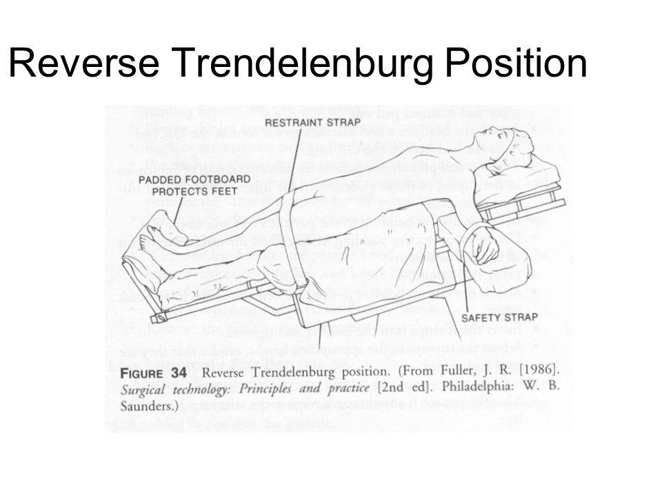 Reverse Trendelenburg Position