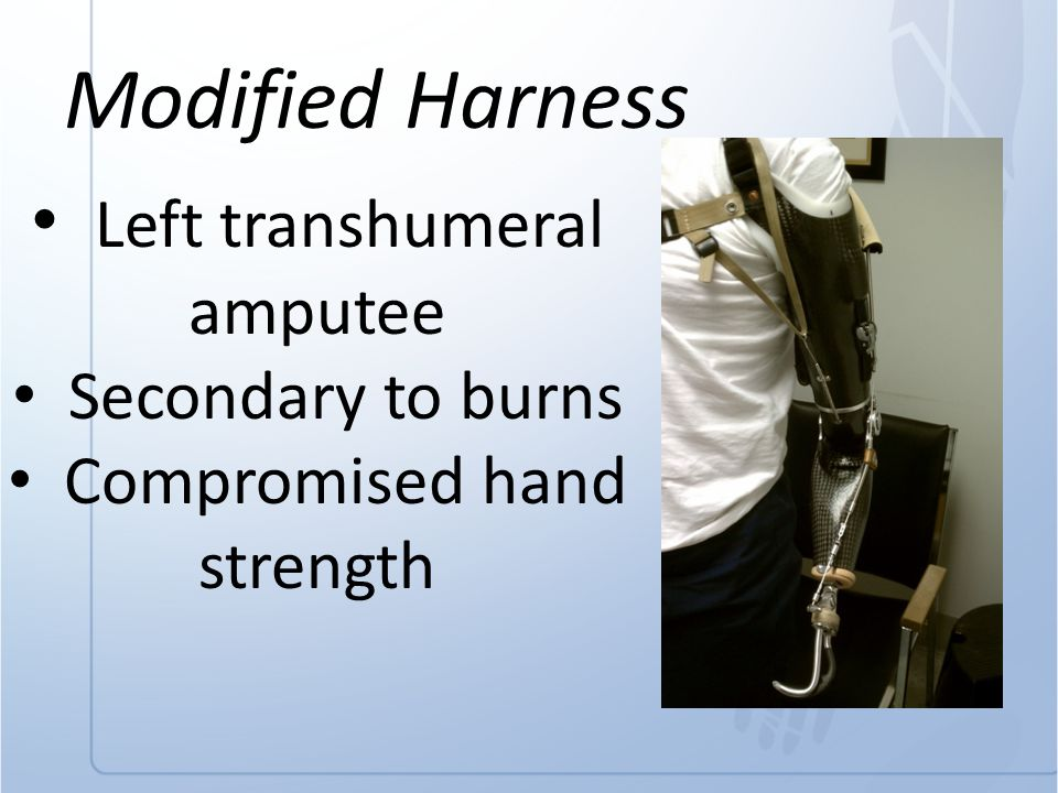 Modified Harness Left transhumeral amputee Secondary to burns Compromised hand strength