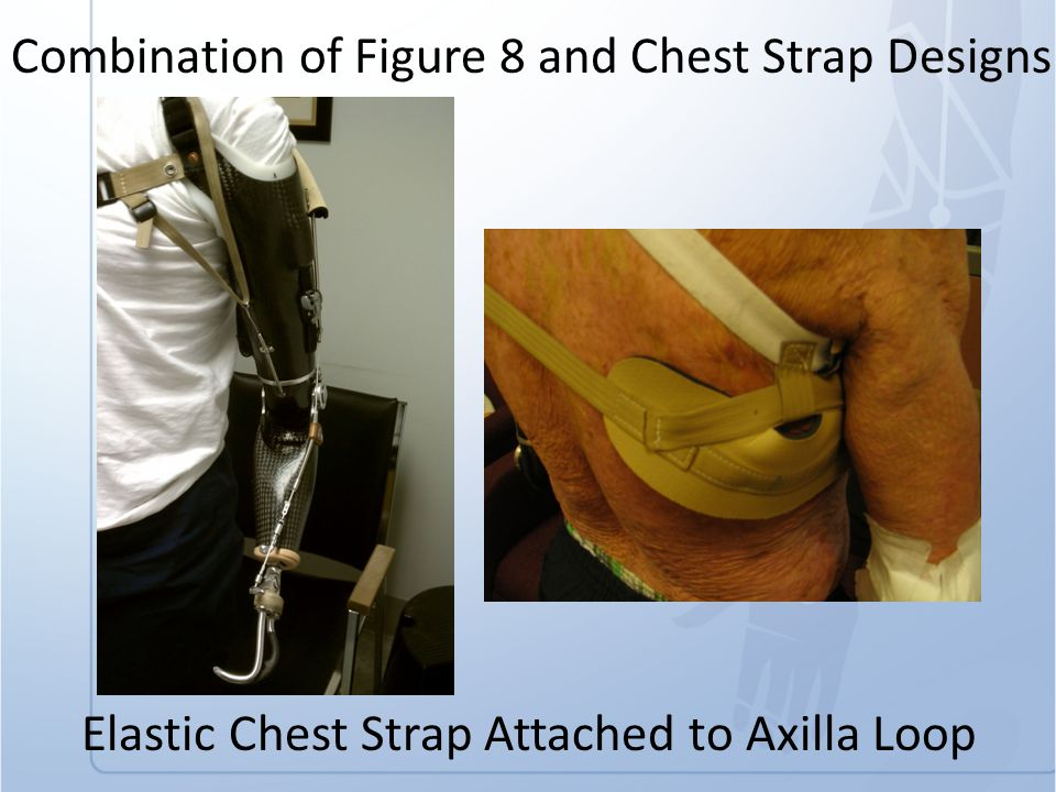 Elastic Chest Strap Attached to Axilla Loop Combination of Figure 8 and Chest Strap Designs